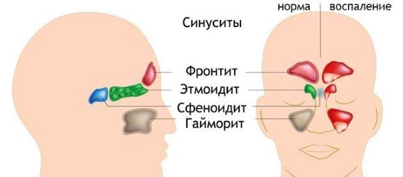 Осложнения синусита, как правило, затрагивают внутричерепные структуры