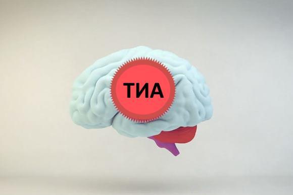 В народе ТИА обычно называют микроинсультом