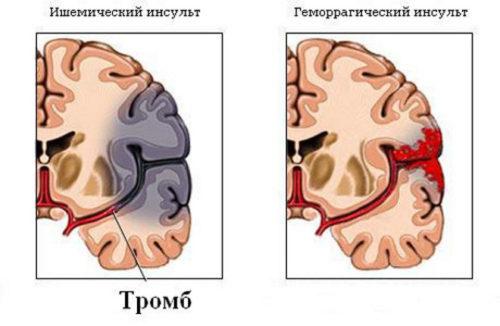 Какие бывают виды стволового инсульта