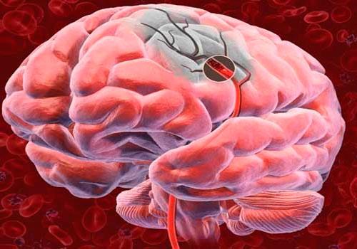 Причины развития ишемического инсульта