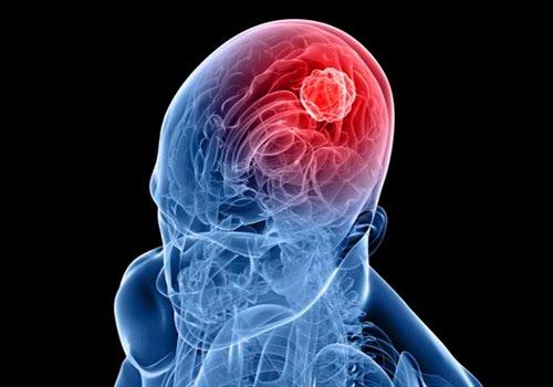 Чем опасно нарушение кровообращения в вертебро-базилярном бассейне?