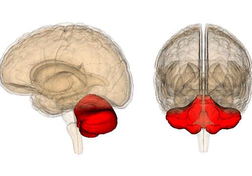 Симптомы поражения мозжечка