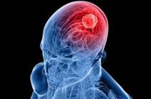 Нарушение кровообращения в вертебро-базилярном бассейне: последствия, лечение и реабилитация