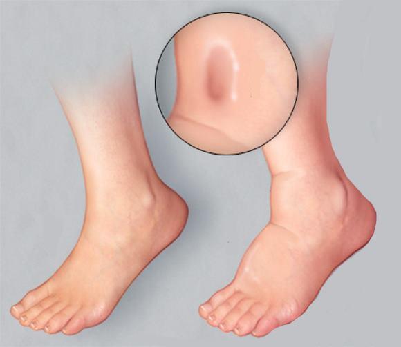 Появление длительно неисчезающей ямки после нажатия пальцем