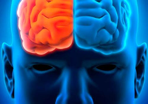 Сторона поражения головного мозга