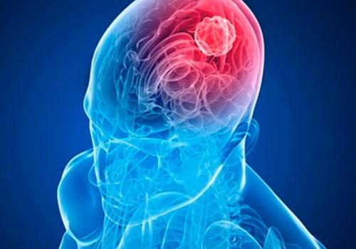 Лакунарный инсульт - небольшой очаг поражения головного мозга