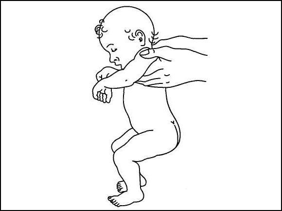Ребенок, поднятый под мышки, подтягивает ноги к животу и некоторое время держит их в таком положении
