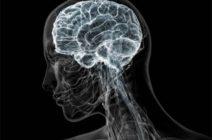 Отек мозга у больных с инсультом: профилактика, прогноз