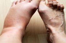 Нарушение кровообращения в парализованной конечности