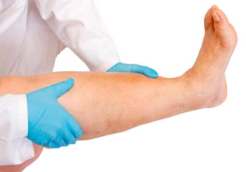 Обследование пациента с отечностью ног