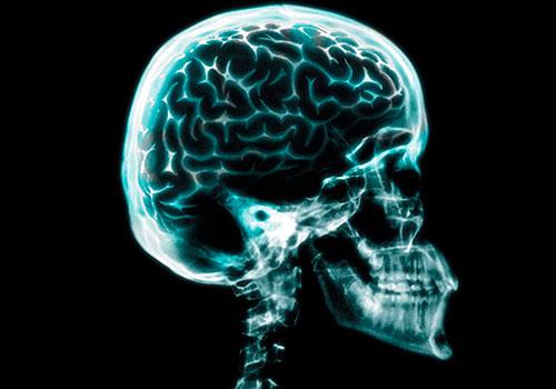 Перелом черепа - открытый и закрытый