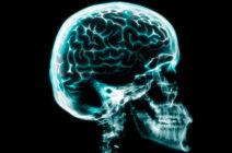 Клинические проявления переломов костей черепа