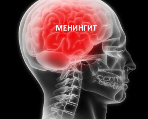 Реактивный менингит протекает тяжело