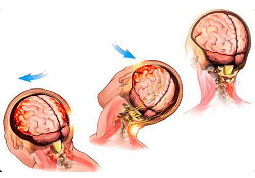 Тяжелая степень сотрясения головного мозга
