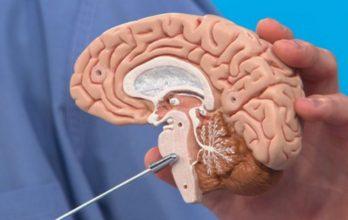 Нарушение мозгового кровообращения в стволе головного мозга