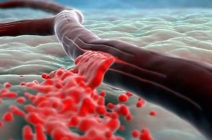 Субарахноидальное кровоизлияние – есть ли шансы на реабилитацию?