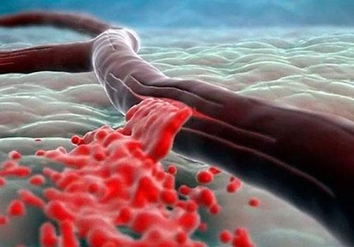 Субарахноидальное кровоизлияние и его последствия