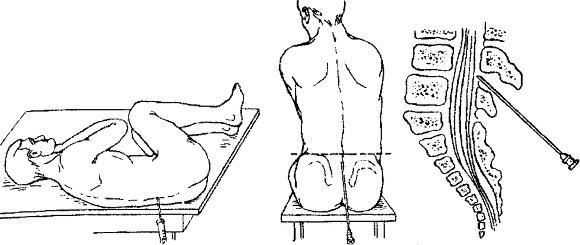 Взятие спинномозговой жидкости