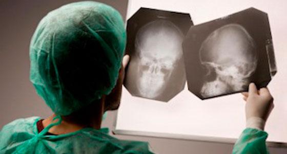 Рентген при менингите