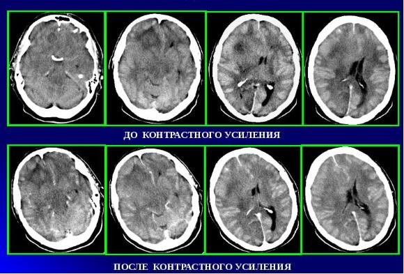 Протоплазматическая астроцитома возникает преимущественно в сером веществе головного мозга