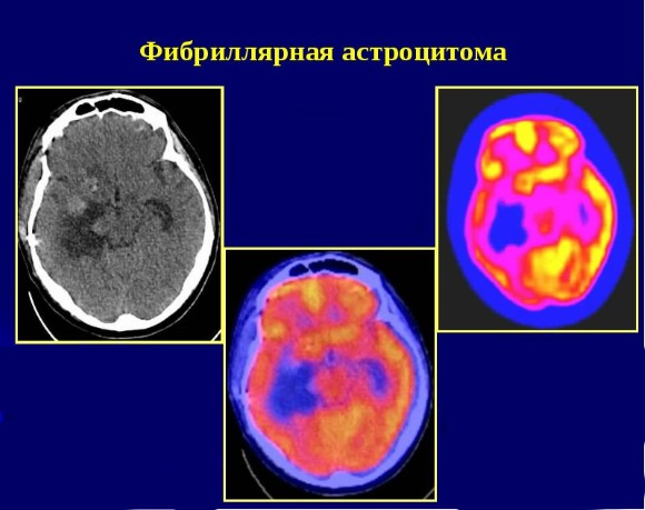 Астроцитома II степени злокачественности