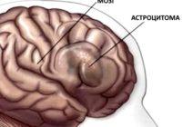 Астроцитома – самое распространенное новообразование мозга