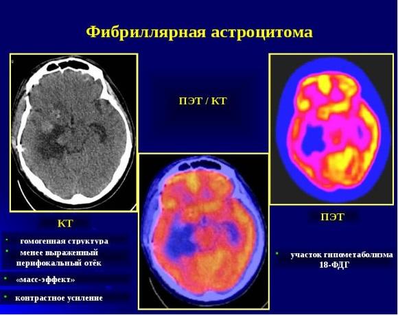 Фибрилярная астроцитома - наиболее частый подтип диффузной астроцитомы
