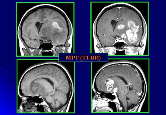 Злокачественное новообразование головного мозга