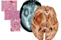 Глиобластома головного мозга – всегда ли она неоперабельная