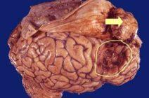 Как проявляется менингиома у взрослых и детей?
