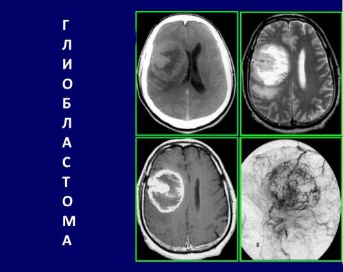 Как выявляется глиобластома: признаки и симптомы заболевания
