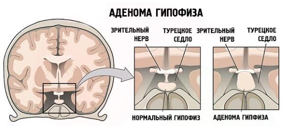 Компрессия зрительного нерва