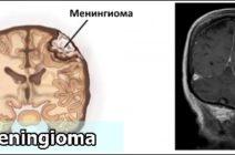 Лечение менингиомы: традиционные методы и народные средства