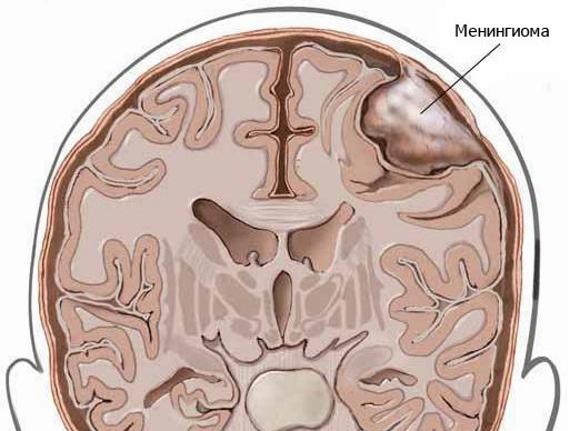 Менингиома представляет собой опухоль мозговой оболочки