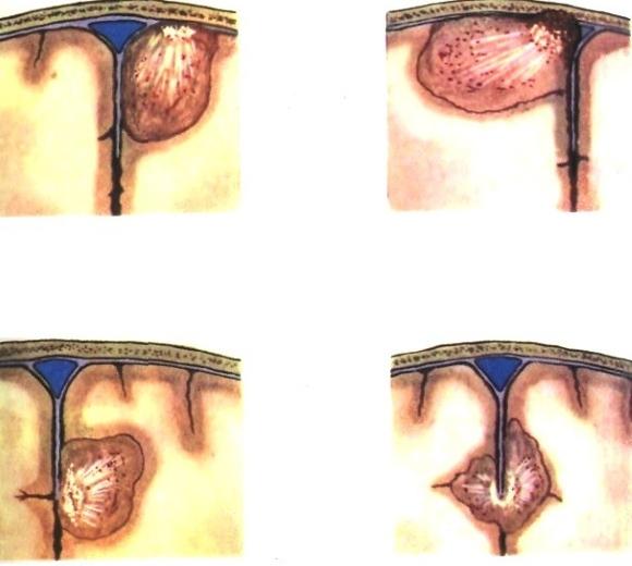 Парасагиттальные менингиомы