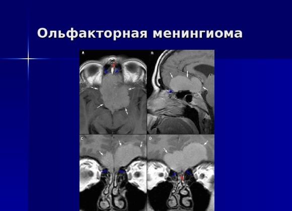 Ольфакторные менингиомы встречаются довольно редко