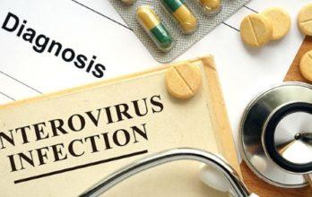 Менингит энтеровирусной этиологии: причины, симптомы, диагностика, лечение