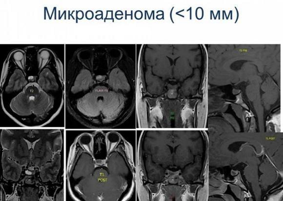 Размеры микроаденомы гипофиза не превышают 1 см