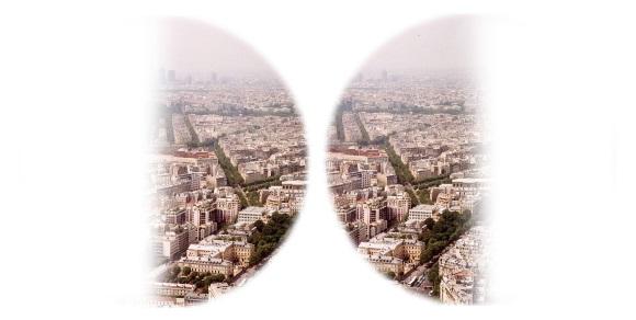 Дефект височных половин полей зрения