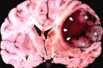 Неоперабельный рак мозга: симптомы, современное лечение