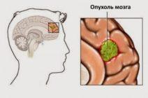 Онкологические образования головного мозга третьей стадии – каковы прогнозы на дальнейшую жизнь?