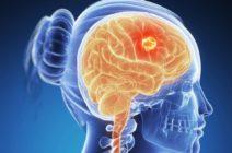 Первые признаки злокачественной опухоли (рака) головного мозга