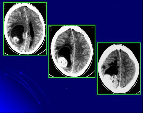 Агрессивная форма опухоли мозга