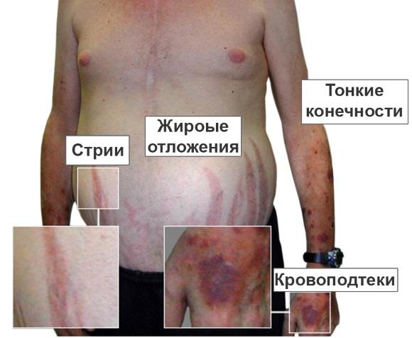 Клинические проявления синдрома Иценко-Кушинга