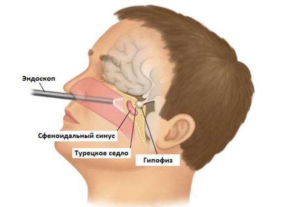 Транссфеноидальная аденомэктомия