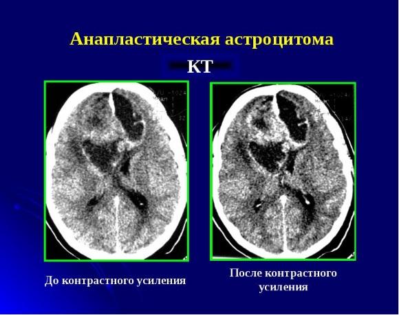 Анапластическая астроцитома на КТ
