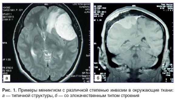 Различные степени инвазии менингиом в окружающие ткани