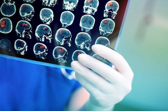 Опухоль мозга на снимке
