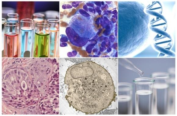 Процесс зарождения и развития опухоли называют онкогенезом