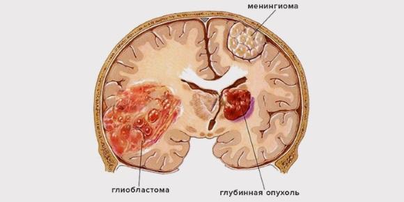 Различные опухоли мозга